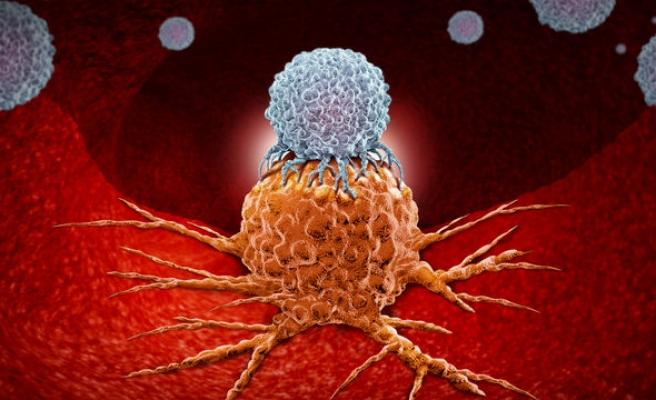 Kanserli dokuyu keşfedecek algoritma geliştirildi...