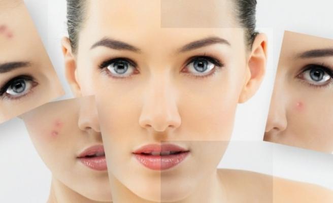 Soluk cildin nedenleri nelerdir?