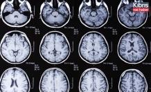 Beyni çürüten gizemli hastalık patlak verdi
