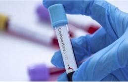 Koronavirüsünde ürküten rakam açıklandı