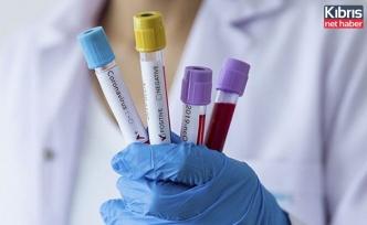 Korona virüsü yenen her 10 kişiden 9'unda görülüyor