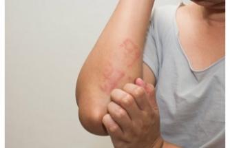 Kaşıntıya karşı 10 etkili yöntem
