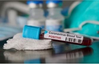 Azerbaycan'da corona virüs tespit edildi