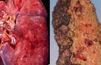 Korona virüsün akciğerlere verdiği hasar
