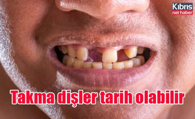 Takma dişler tarih olabilir